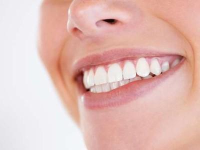 8 điểm cần lưu ý trước khi làm trắng răng